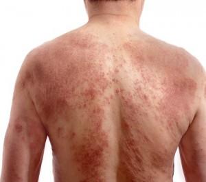 Photo-eczema 01