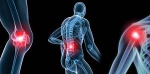 osteoarthritis-540x266
