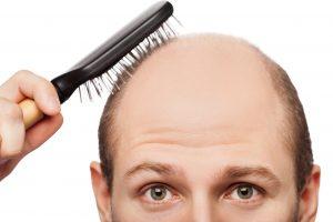 hair loss 01